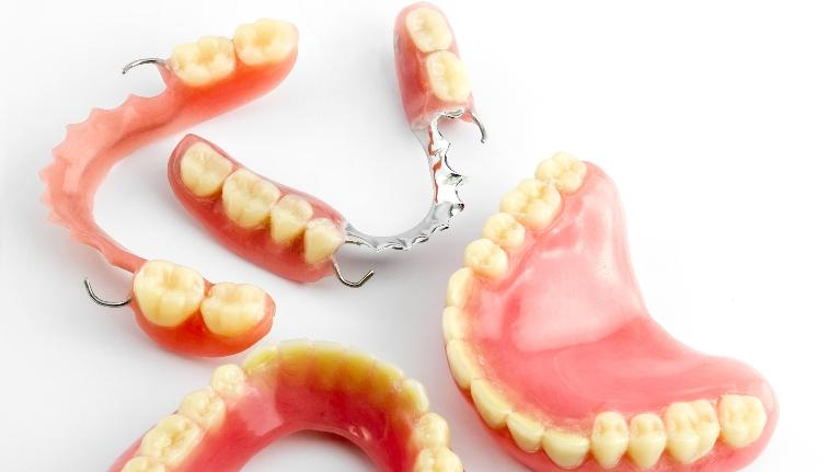 Common Questions People Ask About Dentures | Bonita Grande Dental