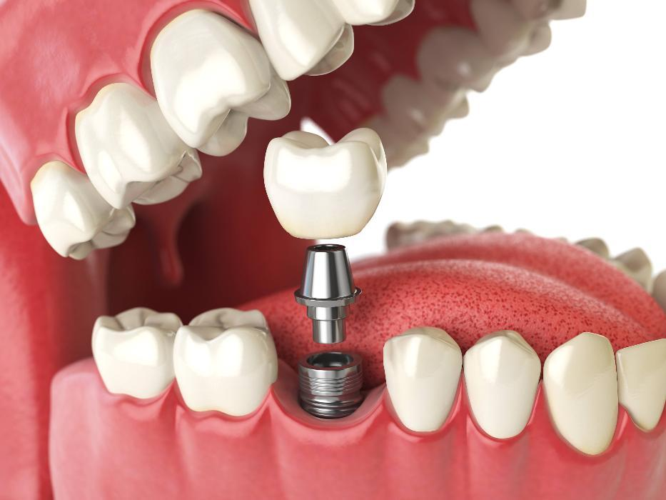 Diagram of screw and dental crown going into gums | Dental Implants Bonita Springs