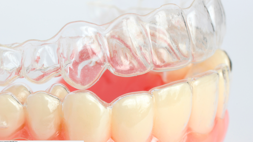 Invisalign clear aligners on a model of teeth at Bonita Grande Dental in 34135