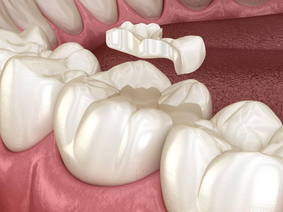 Tooth colored fillings covering bottom molar at Bonita Springs dentist office
