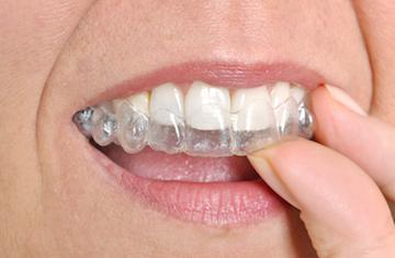 A woman inserts an aligner into her top teeth | Invisalign bonita springs
