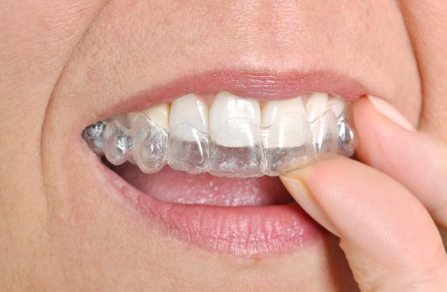 Invisalign Clear Braces Bonita Springs FL | Person inserting Invisalign aligners
