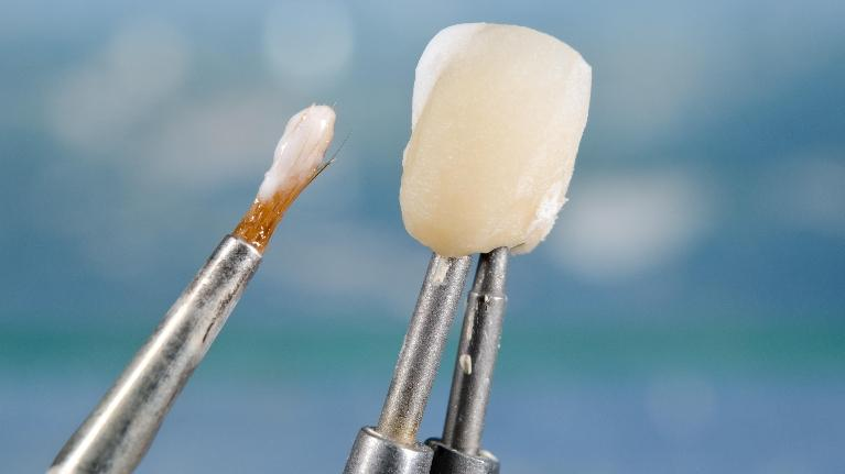 a dental crown being made | dental crowns bonita springs fl