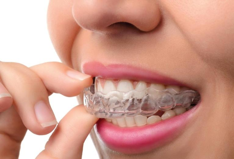 Woman putting on Invisalign | Invisalign North Naples