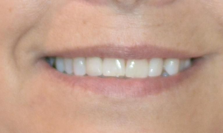 restored smile | dental crown | bonita springs fl