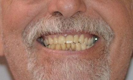 Bonita Springs Florida Dentist Smile Gallery