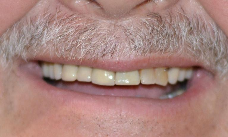 We Revitalized This Patient's Smile With Crowns And A Partial Denture