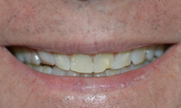 Close up of patients mouth with fractured and discolored teeth at Bonita Springs dentist office