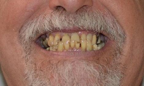 full dentures | tooth extraction | bonita springs