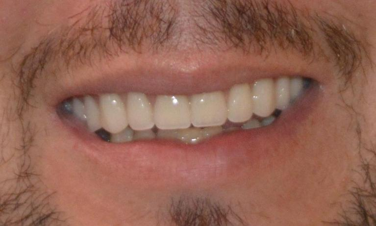 A-Patient-s-Smile-Restored-With-A-Full-Upper-Denture-After-Image