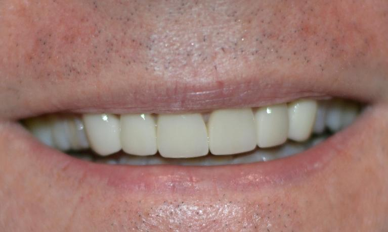 Smile Fixed With Dental Crowns | Bonita Springs FL