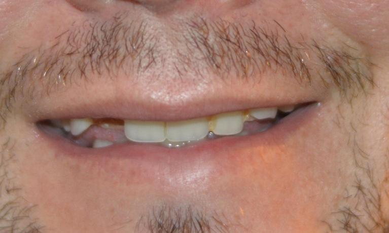 A-Patient-s-Smile-Restored-With-A-Full-Upper-Denture-Before-Image