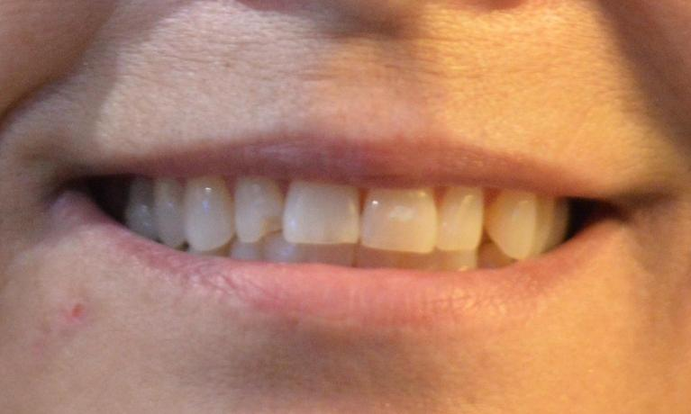 Cracked Tooth Before Picture | Bonita Springs FL