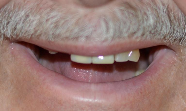 We-Revitalized-This-Patient-s-Smile-With-Crowns-And-A-Partial-Denture-Before-Image